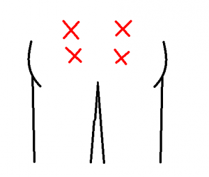 腰痛の位置